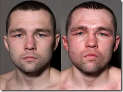 a_boxers_face_before_and_after_taking_a_few_punches_640_10
