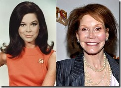 Mary-Tyler-Moore-Plastic-Surgery