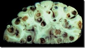 braintapeworms