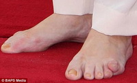 brown_toes.jpg