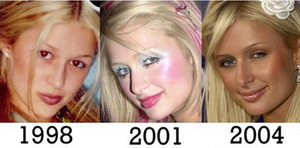 paris_hilton_three_nose_job.preview.jpg